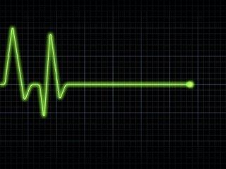_electrocardiograma_3ed38810.jpg