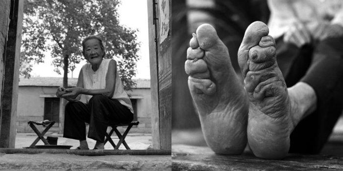 Guo Ting Yu, 2010-ben  83 éves.<br />Anyja nem akarta elkötni lánya lábát, ezért Guo 15 évesen saját maga kötötte el lábfejét. Megfigyelte anyukája módszerét, és a jó házasság reményében megpróbálta csökkenteni lába méretét. Hiába sikerült az ujjait talpa alá hajlítani, lába hossza mégis ugyanolyan maradt.<br />