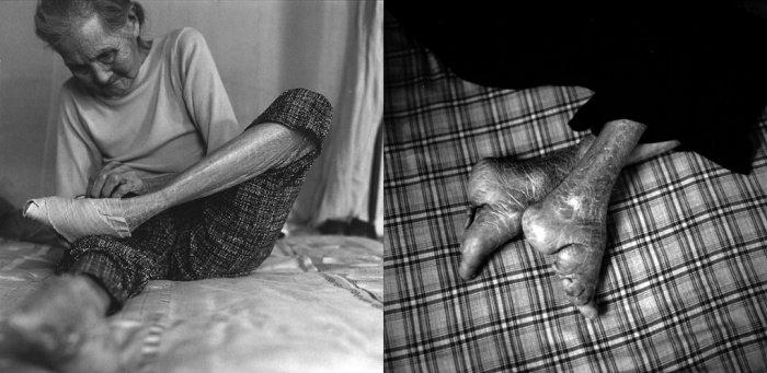 Huo Guan Yu, 2010-ben  89 éves.<br />Nővére tanította meg hat éves korában a lábfej elkötésére.<br />