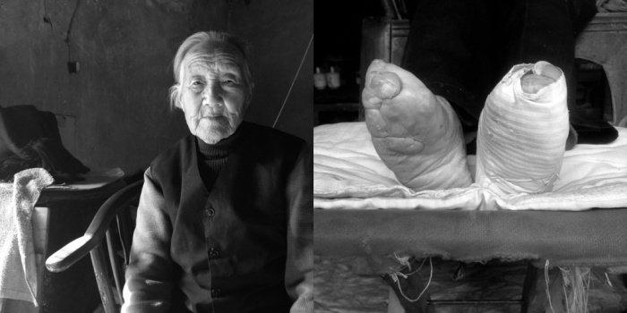 Ma Zhen, 2014-ben  96 éves.<br />7 évesen kötötték el a lábát. Annyira sírt, hogy nagyapja tiltakozott, de nem tudta megállítani a hagyományt. 30 évesen kikötötte a lábát, mert akit elkaptak kötött lábbal, arra büntetést szabtak ki.<br />