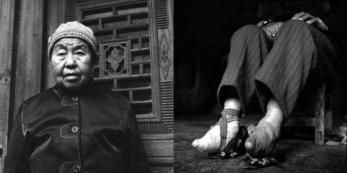 Pue Hui Ying,  2011-ben 76 éves. <br />Lábát 7 évesen kötötték el, majd rövid időre levették a szorítást 12 éves korában, ahogy azt a törvény megkövetelte 1949-ben. Az kikötözés ismét hatalmas kínokat okozott, mert a nőknek hozzá kellett igazodniuk a törött lábujjon való állásra és járásra. Épp ezért ő ismét bekötötte lábát, és azóta nem is vette a kötést.<br />