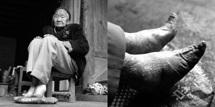 Si Yin Zhin,  2011-ben 90 éves.<br />Lába soha nem volt kikötve, és mára teljesen elvesztette eredeti alakját, helyette teljesen átvette a hosszú évekig hordott cipő formáját.<br />