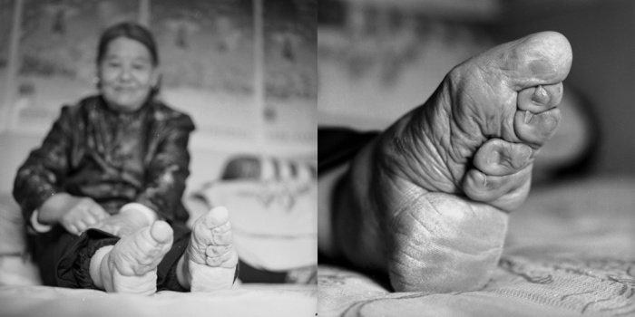 Su Xi Rong, 75 évesen 2008-ban. <br />Őt tartották a legszebb nőnek a falujában pici lába miatt. Ma már nem tud túl sokat meni, mert az idők során felszedett súlyfelesleget a pici lábak nem bírják. Mikor az első időkben megpróbálta kikötni a lábát nagyanyja kis bőrdarabokat vágott le lábujjaiból büntetésnek.<br />