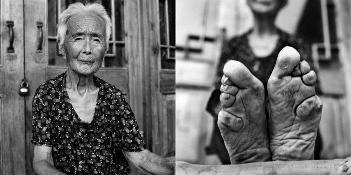 Zhao Hua Hong,  2010-ben 83 éves.<br />Lábát 15 évesen kötötték el.<br />