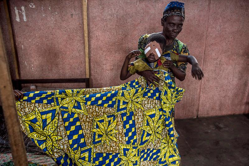 """HAJDÚ D. ANDRÁS: Magyar szemész Kongóban<br />Dr. Hardi Richárd szemorvos és szerzetes húsz éve gyógyít Afrika szívében, a Kongói Demokratikus Köztársaságban. Rokonokba kapaszkodva vagy bicikli csomagtartóján érkeznek Richárd ideiglenesen felállított műtőjébe a szürkehályog miatt sokszor addigra már teljesen világtalan páciensek. Ahogy Richárd fogalmaz: 'Ezeken az utakon 300–400 kilométer megtétele olyan, mintha azt kérném valamelyik budapesti beteg hozzátartozójától, hogy a hetven éves vak nagymamáját tolja ki Párizsba a biciklije csomagtartóján…"""" Sokaknak ez az egyetlen esélye arra, hogy ne vakon és kiszolgáltatottan éljék le az életük hátralévő részét egy sárkunyhó belsejében. . A hétéves Mbedji mindkét szemére megvakult a szürkehályog miatt három évvel ezelőtt. A Nkembe-ben élő családja 80 kilométerről hozta be a kislányt Richárd doktor Kole-ben felállított ideiglenes műtőjébe. Az úton kézenfogva kísérték, a nehezebb terepen a nagymama a hátán cipelte Mbedjit. Miután csak az utolsó műtéti napra értek oda, Richárd a protokollt felrúgva a kislány mindkét szemét egyszerre műtötte meg – hiszen ki tudja, mikor vágna neki a család még egyszer egy ilyen nagy útnak.A műtét sikerült, másnap Mbedji már tökéletesen látott. A látásával együtt visszakapta az életét is: iskolába járhat, később családot alapíthat."""