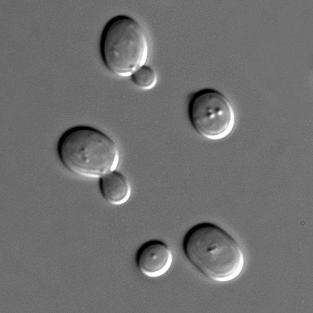640px-S_cerevisiae_under_DIC_microscopy.jpg
