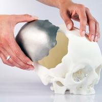 Sci-fi tech: 3D nyomtatott testrész pótlékok