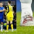 Ivanovic véres cipője