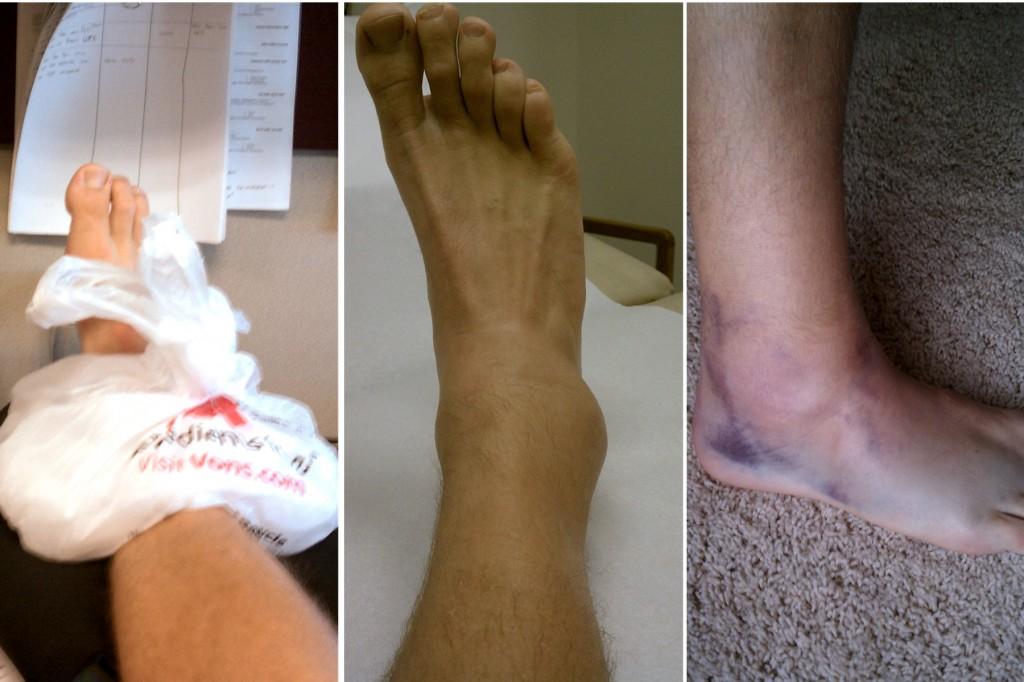 ankle-sprain-page-001-1024x682.jpg