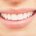 Varázsold hófehérré a fogaidat egy otthon elkészíthető csodaszerrel