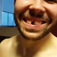 Kiverték a zágrábi kézis fogát Veszprémben