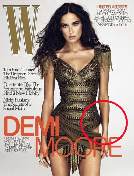 Mi történt Demi Moore csípőjével? <br />