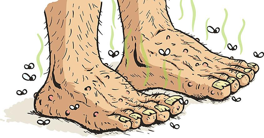 smelly-feet.jpg