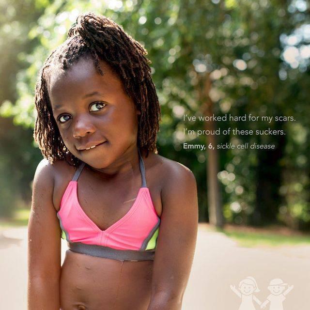 """""""Keményen megdolgoztam a hegeimért. Büszke vagyok a kis genyákra."""" – Emmy, 6 éves, sarlósejtes betegség"""