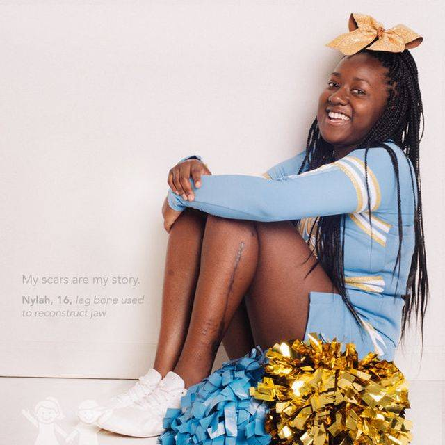 """""""A sebhelyeim az én történetem."""" – Nylah, 16 éves, lábszárcsontból állkapocs-rekonstrukció"""