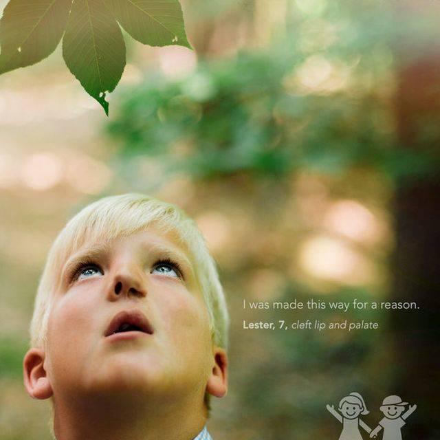 """""""Okkal jöttem így a világra."""" – Lester, 7 éves, ajak- és szájpadhasadék"""