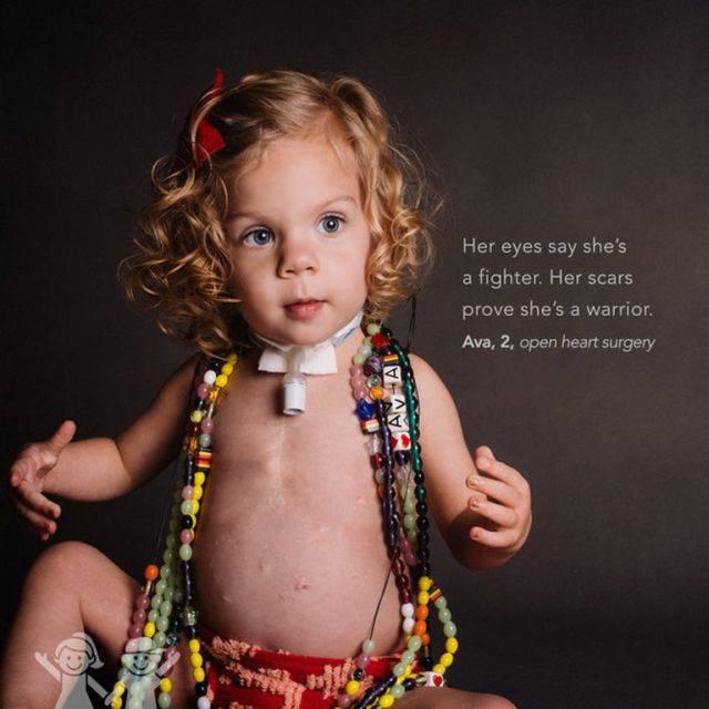 """""""A szemeiben látszik, hogy nagy harcos. A hegei pedig elárulják, hogy hős."""" – Ava, 2 éves, nyitott szívműtét"""