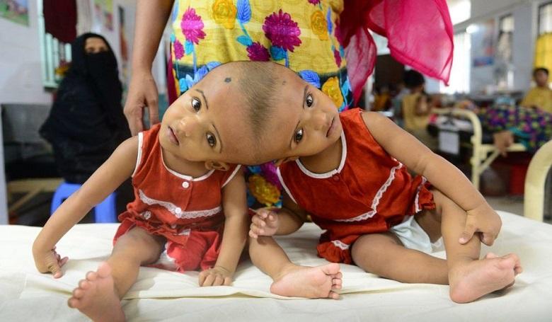 Csókay András és csapata sikeresen választotta szét a bangladeshi sziámi ikreket