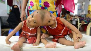 Egyedül a magyar orvosok menthetik meg ezeket a gyerekeket