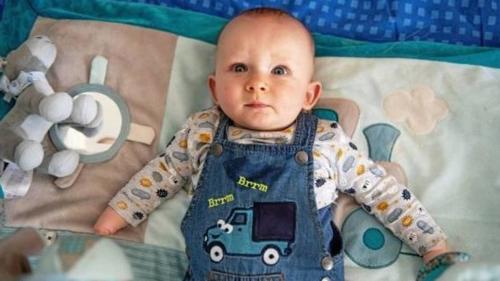 Három gyerek született végtag rendellenességgel