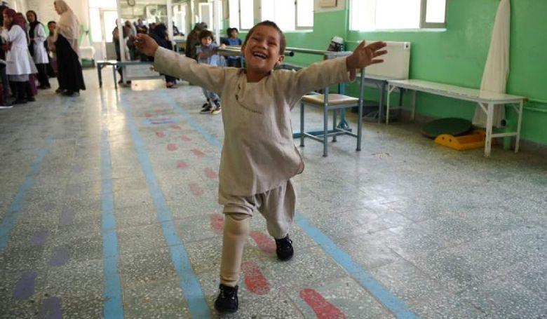 Ilyen egy kisfiú öröme, aki új lábat kapott (VIDEÓ)