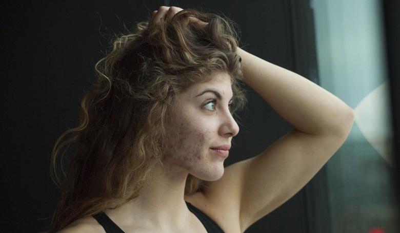 Szilágyi Liliána: Nem félek már szembenézni a gyengeségeimmel