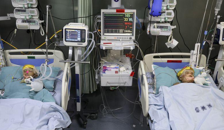 Több műtét vár a szétválasztott sziámi ikrekre