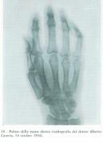 RöntgenPioa.jobbkezről1954.jpg