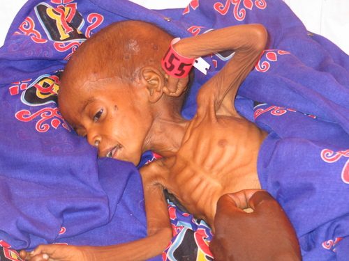 darfur_child_starving.JPG