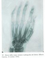 röntgenfelvtelPioa.balkezről1954.jpg