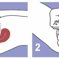 Fiatalok, szex és a spermicid fogamzásgátlók (krém, hüvelytabletta, hüvelykúp)