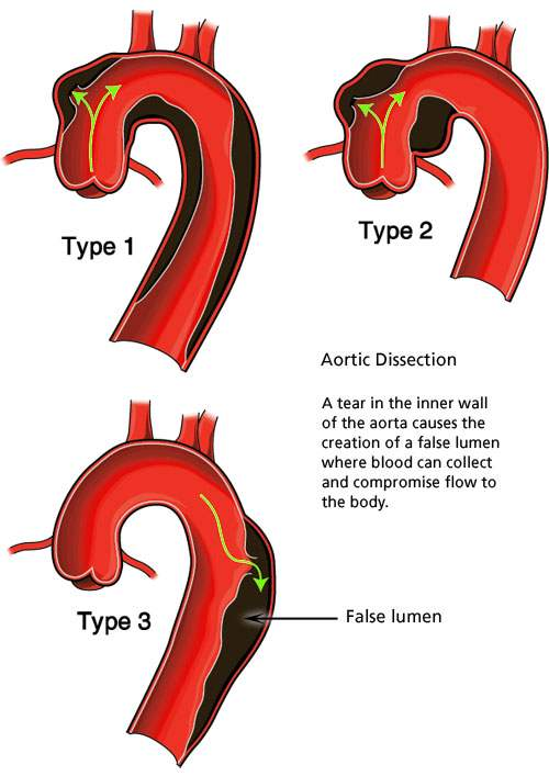 aorticdissection.jpg
