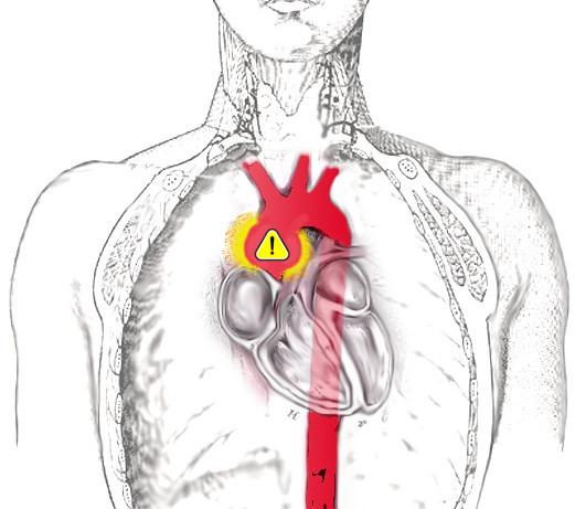 aorta_scheme.jpg