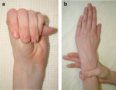 marfan-syndrome-hand-diagnosis_1.jpg