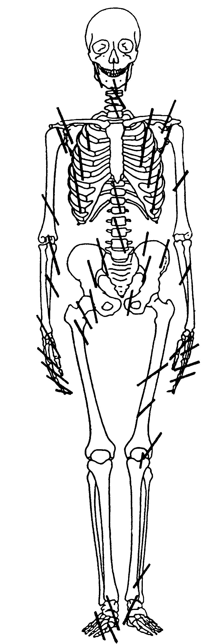 Vágásnyomok az NgLj-2 lelőhelyről származó csontokon