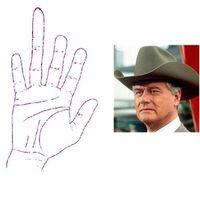 Rettentően eltorzult Jockey Ewing keze