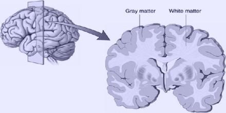 grey-matter0.jpg
