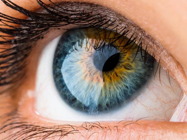 a szem különböző látásélessége okozza)