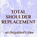 |TOP| Total Shoulder Replacement: - An (Im)patient's View. signal meses likely varias Shadow Twitter levels traducir
