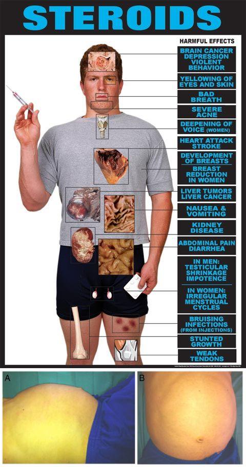 mit használnak a testépítők a zsírvesztéshez