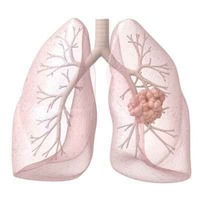 Tüdőrák ellen