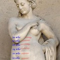 106. Placenta a fundusban