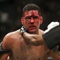 TD|MMA: Weidman lesérült, oda a Rockhold elleni visszavágó