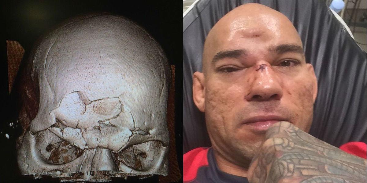 evangelista-cyborg-santos-skull-fracture-michael-venom-page-bellator-158.jpg