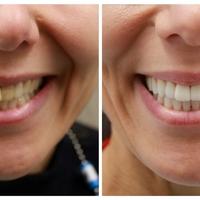 Mennyi a jó fogászati kezelés ára?