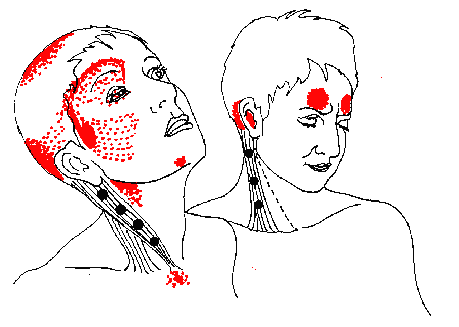 a trigeminus ideg gyulladása