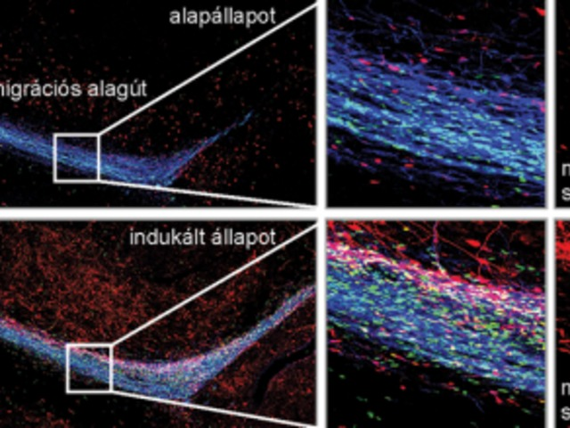 Alpár Alán: Logisztika az idegrendszerben