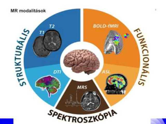 Funkcionális MRI az agykutatásban - mítosz és valóság (video)