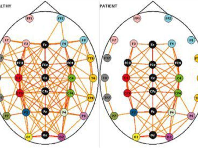 Az emberi agyműködés modellezése gráfelmélet segítségével
