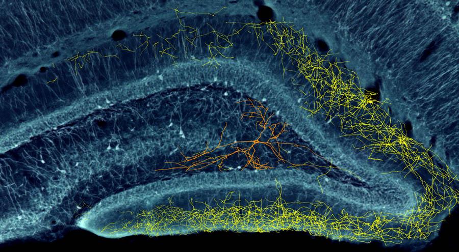 buzsaki_gyorgy_hippocampus_neuroart_1.jpg